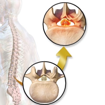 Pain Managment for Spinal Stenosis in Lakeland, Florida