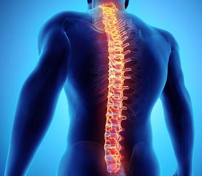 Pain Management for Radiculopathy: Cervical, Thoracic, Lumbar (Pinched Nerve) in Lakeland, Florida