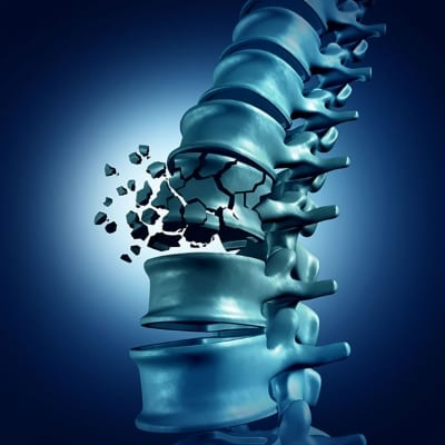 Vertebral Body Fractures and Vertebral Compression Fractures