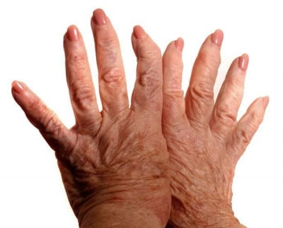Pain Management of Arthritis in Lakeland, Florida