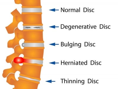Pain Management for Bulging Discs in Lakeland, Florida