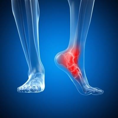 Foot Pain Management in Lakeland, Florida