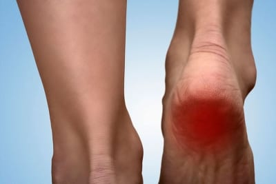 Pain Management for heel spur pain in Lakeland, Florida