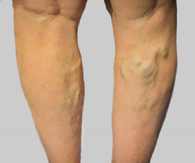 Pain Management for Varicose Veins in Lakeland, Florida