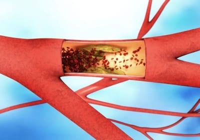 Pain Management for Vein Conditions Producing Orthopedic Leg Pain in Lakeland, Florida