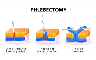 Pain Managment Treatments with Phlebectomy in Lakeland, Florida for varicose veins in Lakeland, Florida