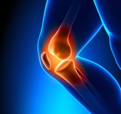 Knee pain treatment in Lakeland, Florida