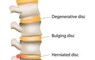 Minimally Invasive Lumbar Discectomy for back pain in Lakeland, Florida