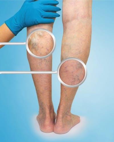 Chronic Venous Disease in Lakeland, Florida