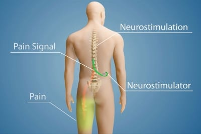 Spinal Cord Stimulation can help control chronic pain in Lakeland, Florida