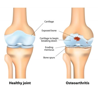 Pain Management for Osteoarthritis in Lakeland, Florida