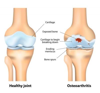 Pain Management for Osteoarthritis in Lakeland, Florida