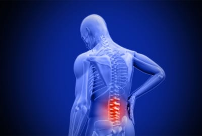 Pain management for a prolapsed disc in Lakeland, Florida