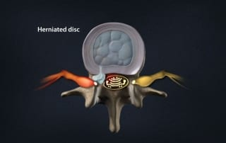 Pain Management for a herniated disc in Lakeland, Florida