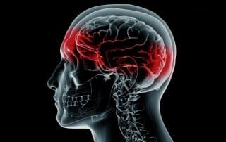 Headaches Explained in Lakeland, Florida