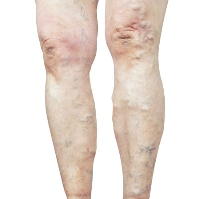 Pain Management with Endovenous Ablation in Lakeland, Florida