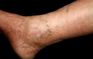 Pain management for Thrombophlebitis in Lakeland, Florida